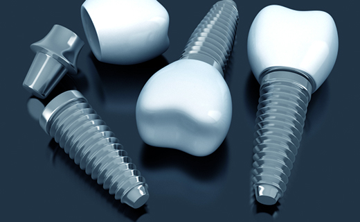 dca-blog_dental-implant-implant-pieces